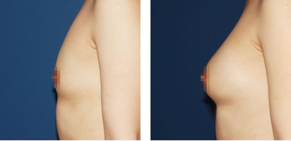 自体脂肪注射丰胸对比案例