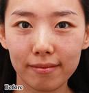 Lipokit生物脂肪移植术前后对比照片