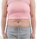 腹部吸脂整形前后对比照片
