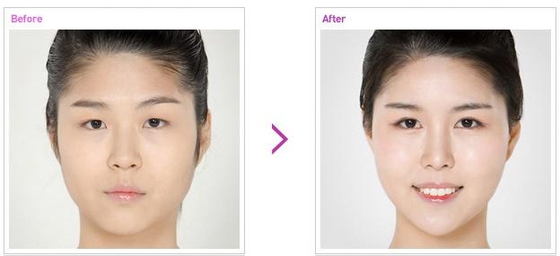[高兰得整形外科]双眼皮,开前眼角手术 前后照片