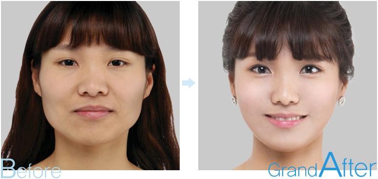 [高兰得整形外科]面部轮廓手术 前后照片