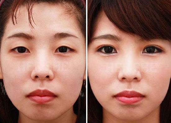 双眼皮整形前后对比照片