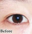韩式双眼皮整形术前后对比照片