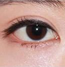 韩式双眼皮手术前后对比照片