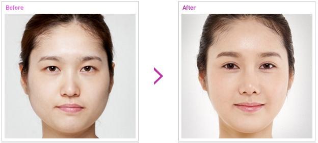 [高兰得整形外科]上开眼角,双眼皮手术前后照片