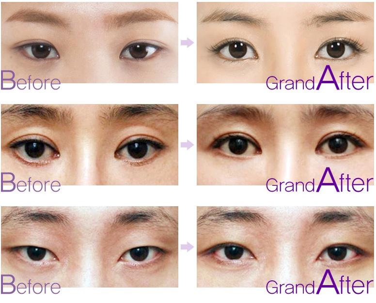 [高兰得整形外科]放低眼角手术 前后照片