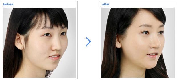 无下巴矫正手术前后对比照片图片