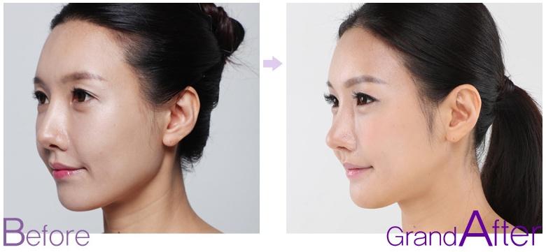 [高兰得整形外科]鼻子修复手术 前后照片