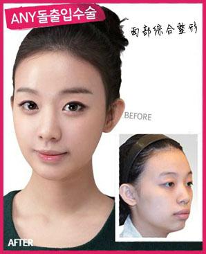 韩国FACE-LINE整形外科医院特色项目