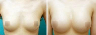 假体丰胸手术前后对比图