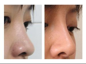 上海第九医院隆鼻手术多少钱