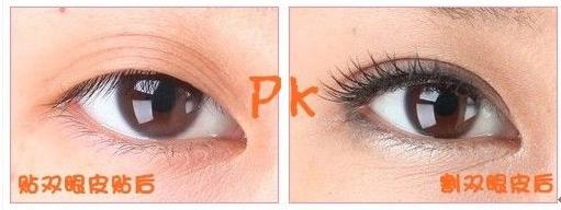 双眼皮贴VS韩式双眼皮手术 哪个美得更放心?