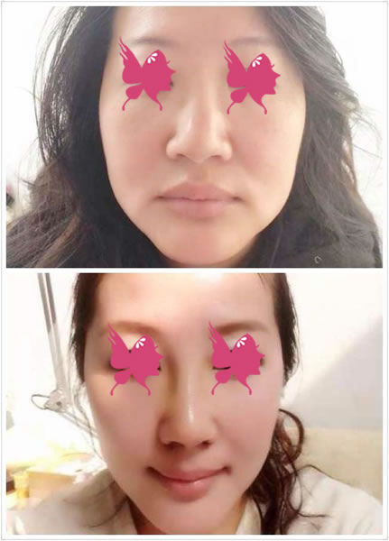 驼峰鼻矫正手术对比案例