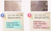 伊百丽分段祛痘—专利技术·保密配方·对症治疗·效果显著