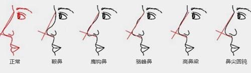 鼻部不完美的情况