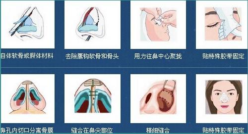 深圳有哪些做隆鼻手术