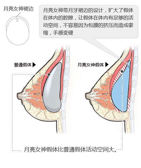 广州博仕整形医院月亮女神假体隆胸