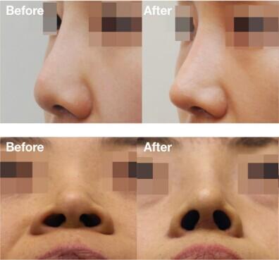 韩国ID医院的美鼻对比图例