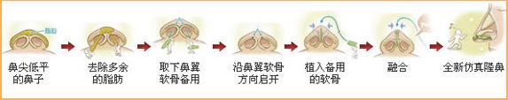 3D无痕仿生隆鼻手术过程