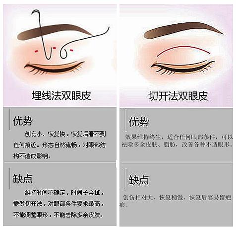 武汉美立方的其他双眼皮方法