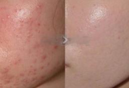干细胞皮肤再生