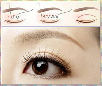 韩式三点双眼皮