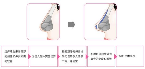 隆鼻手术方法