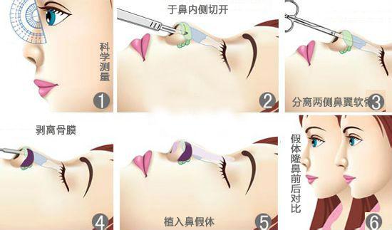 鼻部整形过程图