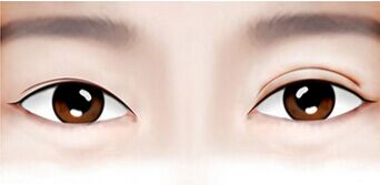两边双眼皮高度不相同