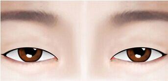 双眼皮线条变不明显