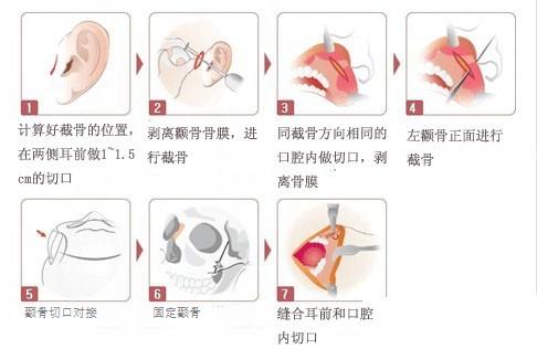 颧骨整形手术过程