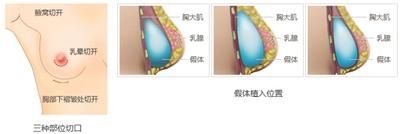 丰胸手术过程