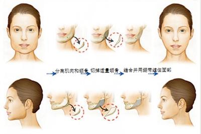 改脸型手术过程
