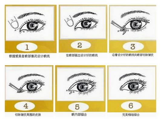 开眼角手术方法