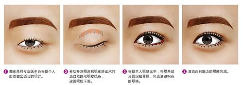 魅眼手术方法