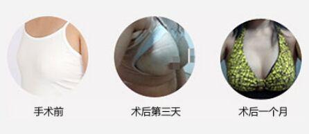 广州自体脂肪隆胸