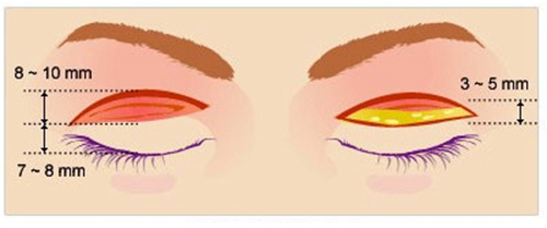 TAT仿生双眼皮手术