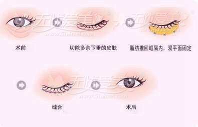 上海九院去眼袋价格
