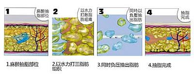 水动力吸脂手术过程