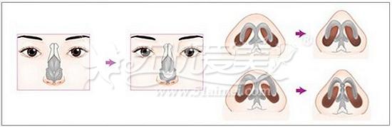 鼻头缩小术