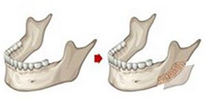 下颌角磨骨手术