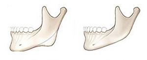 下颌角切除手术