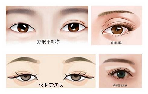 需要进行双眼皮修复手术的人群