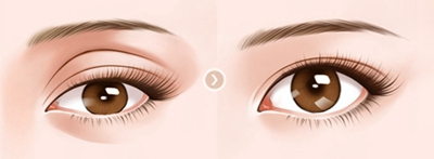 眼部凹陷修复方法