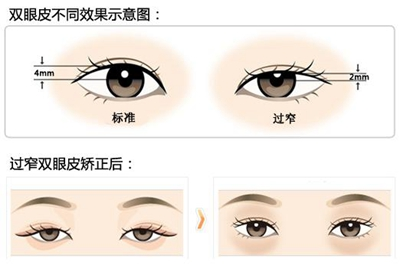 双眼皮线过低修复方法