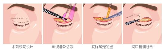 双眼皮手术瘢痕修复方法