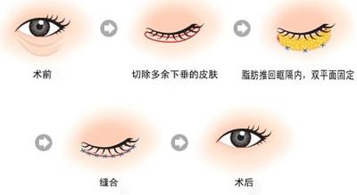 祛除眼袋手术过程