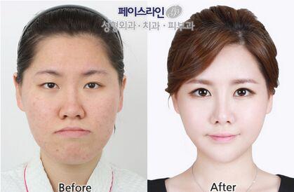 韩国双颚整形做得好的医院都有哪些