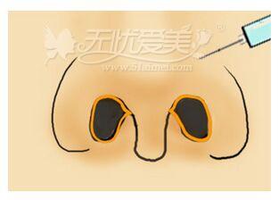 东莞知美整形做假体隆鼻多少钱呢