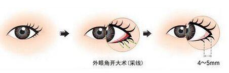 武警三院和京民医院双眼皮哪个好